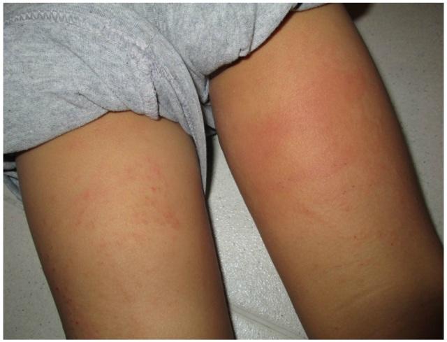 Eczema 9 Jun 13